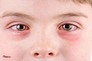 سرخی چشم