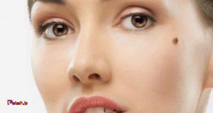 درمان سریع خال جوش شیرین میتواند
