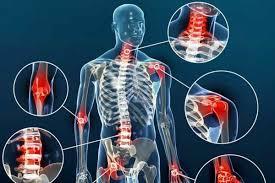برخی از توصیههای پزشکان برای جلوگیری از بروز آرتروز عبارتند از: