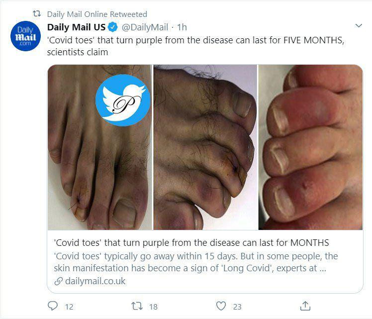 بنفش شدن انگشتان پا هدیه کرونا به انسان