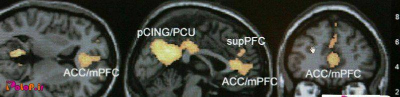 گویا خیلی از پژوهشهایی که تابحال پیرامون مغز با اف ام آر آی انجام شده مشکل داره!