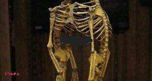 این اسکلت دوقلوهای بهم چسبیده در موزه موتر هست،