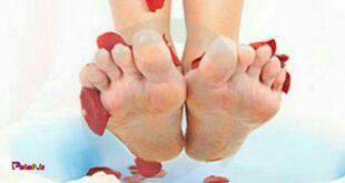 6 روش موثر درمان ترک پاشنه پا؛
