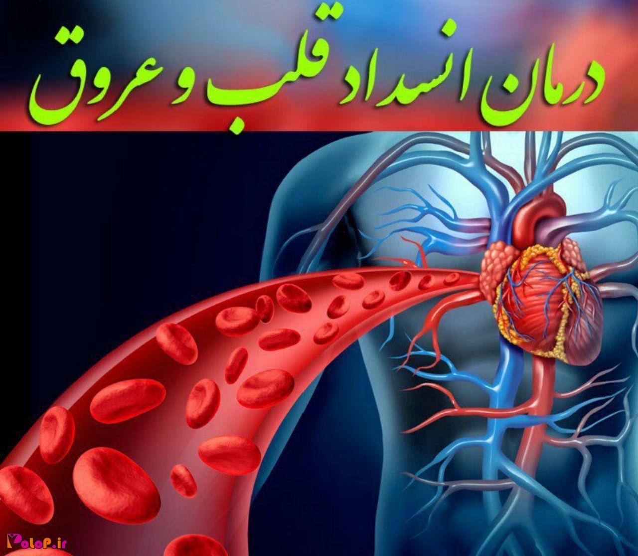 انسداد قلب عروق