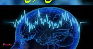 اختلال مغزی