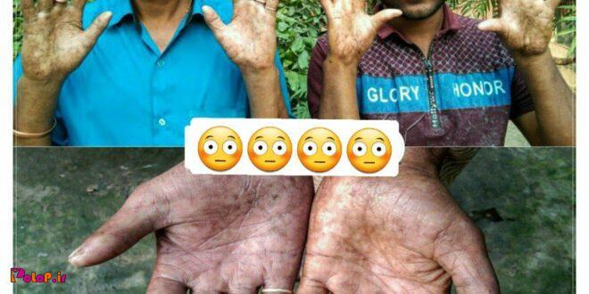 خانواده بنگلادشی اثر انگشت ندارد!