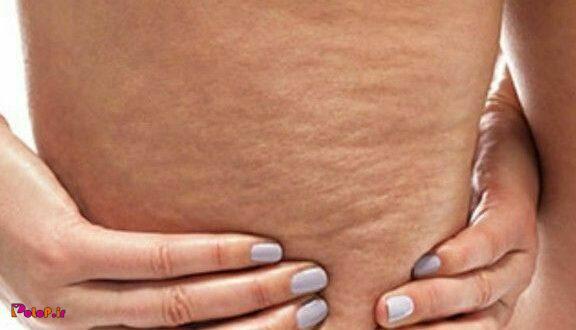 علل ایجاد سلولیت (ناهمواری های پوستی)