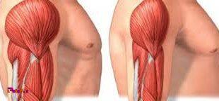 آتروفی عضلانی چیست؟