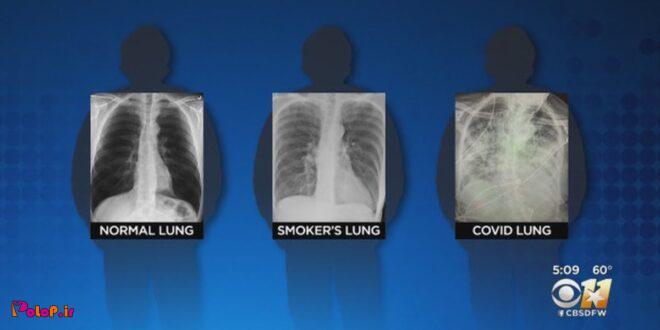 ریه کرونایی از ریه سیگاری هم بدتر است!