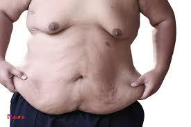 چه کار کنیم که با کاهش وزن، پوستمان شل نشود: