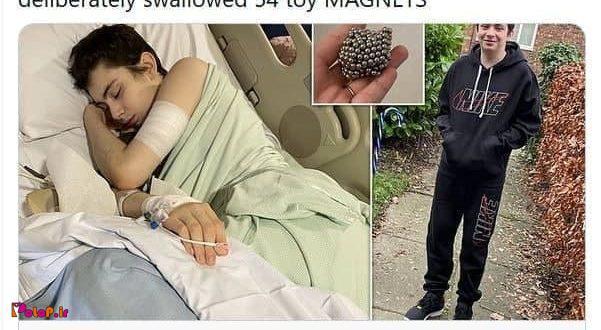دانش آموز ۱۲ ساله، ۵۴ گوی آهن ربای اسباب بازی را بلعيد تا بفهمد اشیای فلزی به شکمش می چسبد یا خیر؟