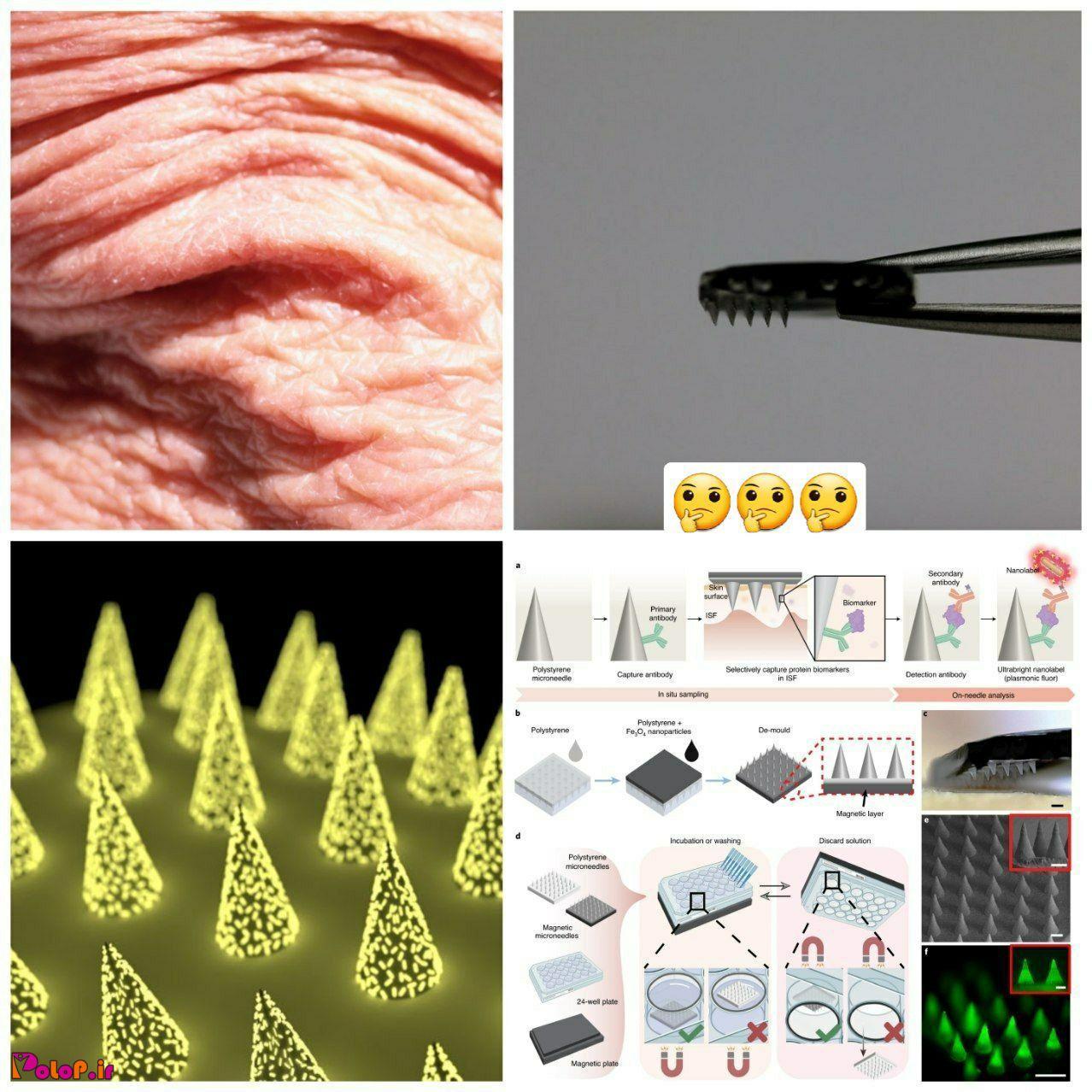 در آینده برای تشخیص بسیاری از بیماریها نیاز به آزمایش خون نداریم، پوست کار ما را آسان میکند !
