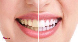 پفک به دلیل خاصیت چسبندگی خود به دندانها آسیب میرساند