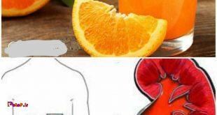 آب پرتقال؛ ضدسنگ کلیه