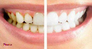 6 ماده غذایی ایجادکننده جرم دندان: