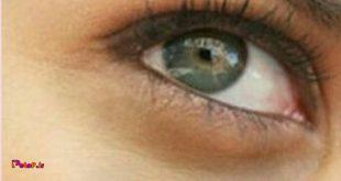 رفع کبودی دور چشم