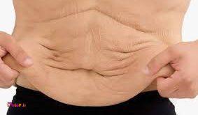 2 باور غلط درباره شل شدن پوست